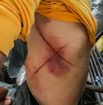 Four Venezuelan Christians Forced to Eat Pages of the Bible, Scarred With Xs After Being Attacked With Knives